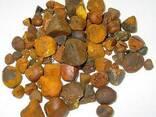 Gallstones - photo 1